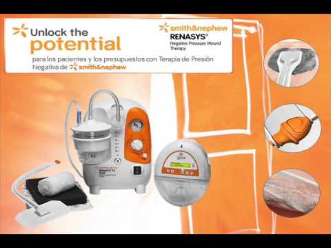 smith and nephew total knee technique guide