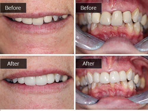 alberta dental fee guide 2015